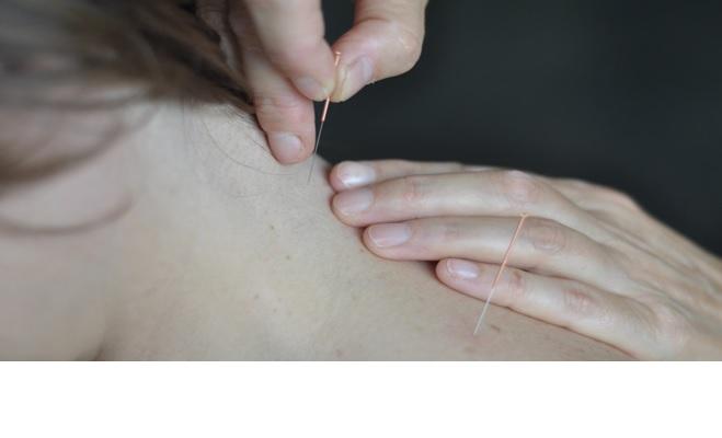 Acupunctuur ondersteunt je energie